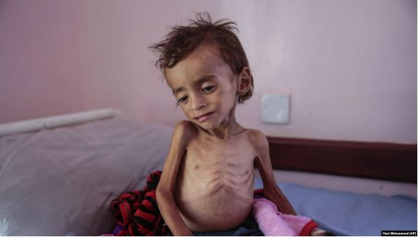 Say Yes to Yemen: Funds for the Famine